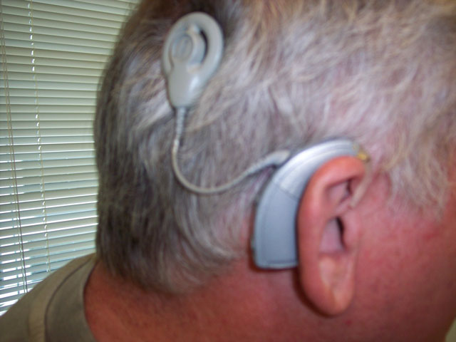 man with a cochlear implant